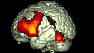 El estudio se centró en la actividad eléctrica cerebral generada con el lenguaje.