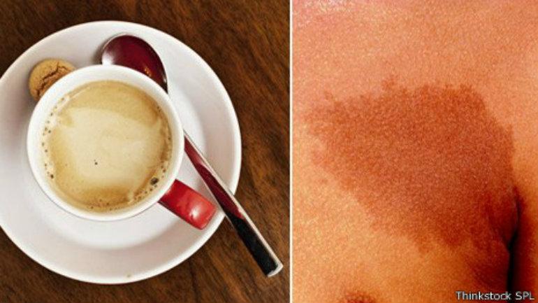 Las manchas café con leche parecen un chorrito de café y leche, según libros de  texto médicos.