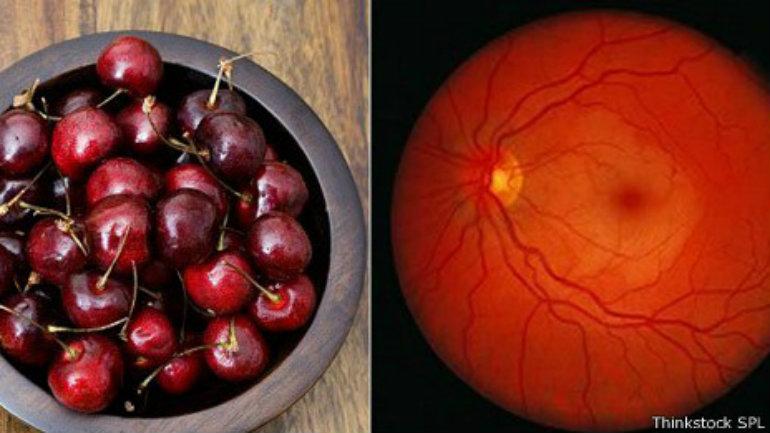 Cuando un vaso sanguíneo ocluye la parte posterior del ojo, se puede ver una  mancha como una cereza roja en el centro.