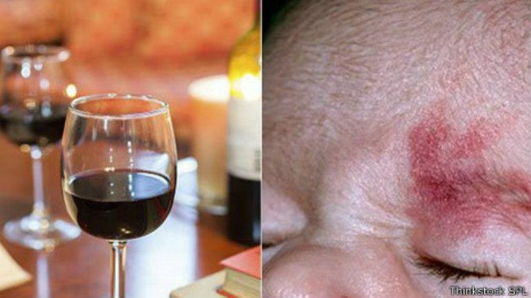 Las manchas de oporto son marcas inofensivas comunes en el rostro.