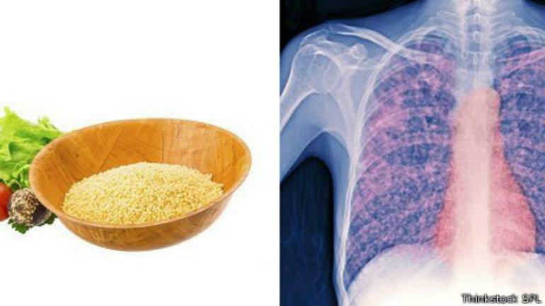 Los rayos X pueden mostrar como se extiende la tuberculosis por el pecho como  pequeñas semillas.